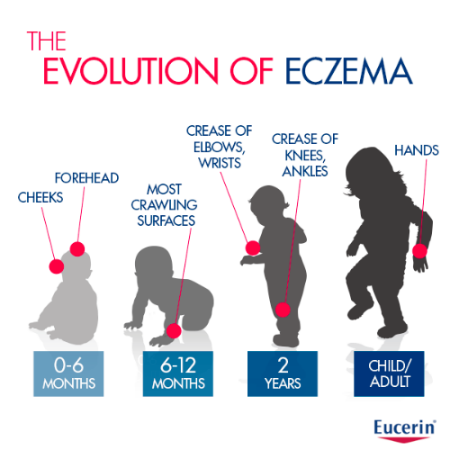 Evolution of Eczema - Eucerin