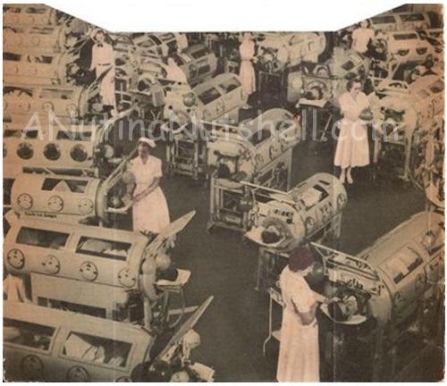 polio hospital iron lungs